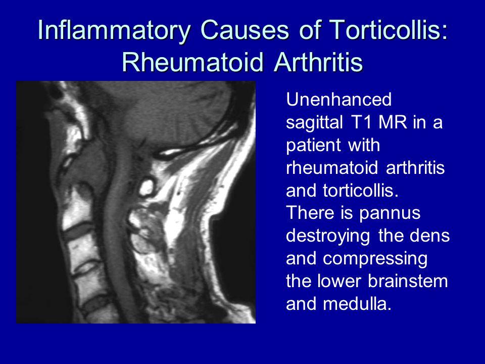 Inflammatory Causes of Torticollis: Rheumatoid Arthritis