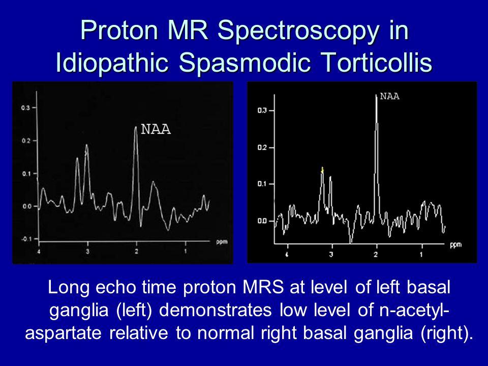 Proton MR Spectroscopy in Idiopathic Spasmodic Torticollis
