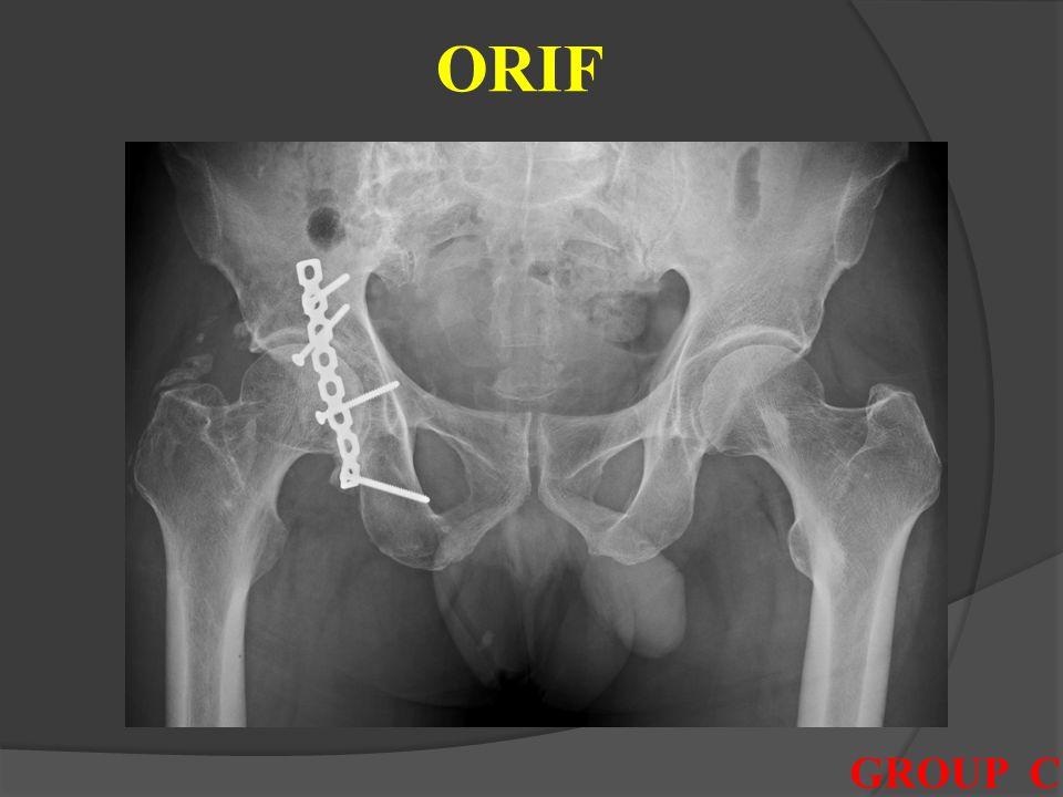 ORIF reconstruction plate를 이용한 open reduction and internal fixation 실시 후 외래 추시 중 joint space narrowing 및 groin pain 발생하여,