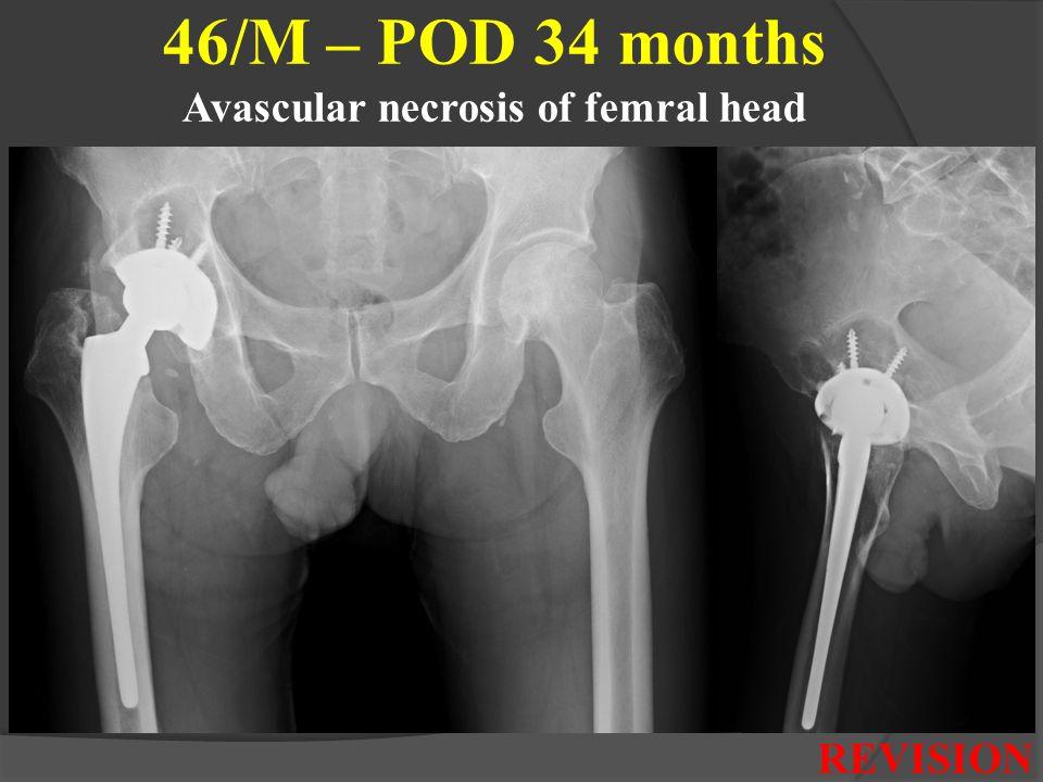 46/M – POD 34 months Avascular necrosis of femral head