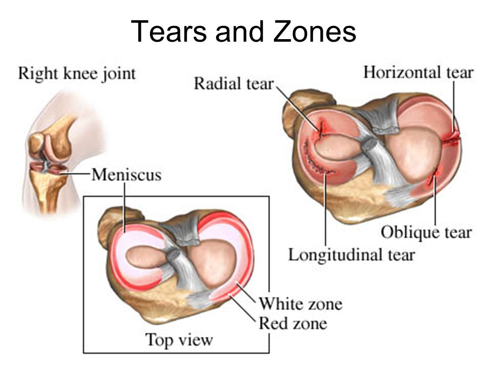 Tears and Zones