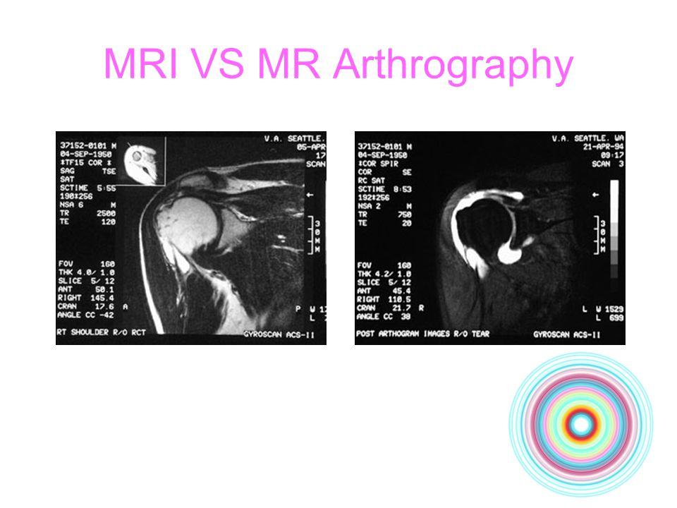MRI VS MR Arthrography