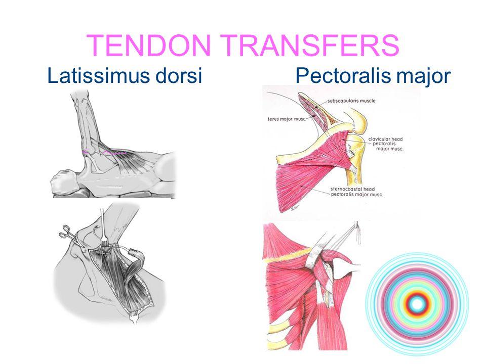 TENDON TRANSFERS Latissimus dorsi Pectoralis major