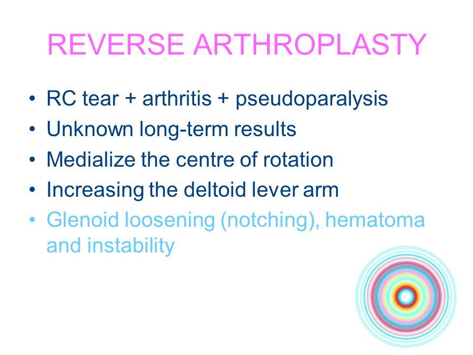 REVERSE ARTHROPLASTY RC tear + arthritis + pseudoparalysis