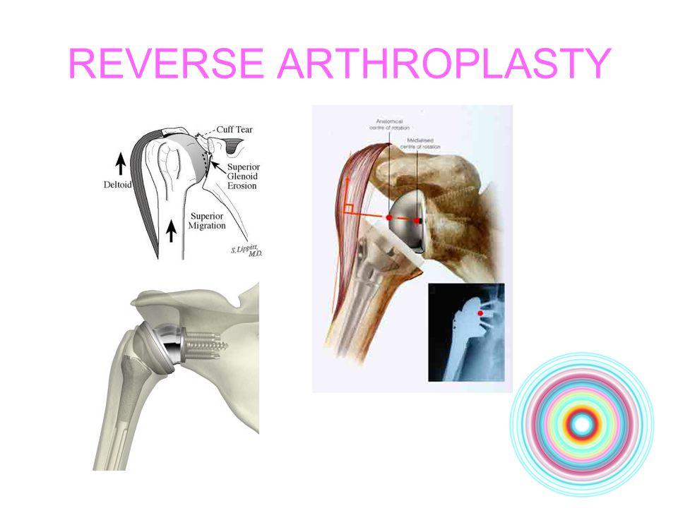 REVERSE ARTHROPLASTY