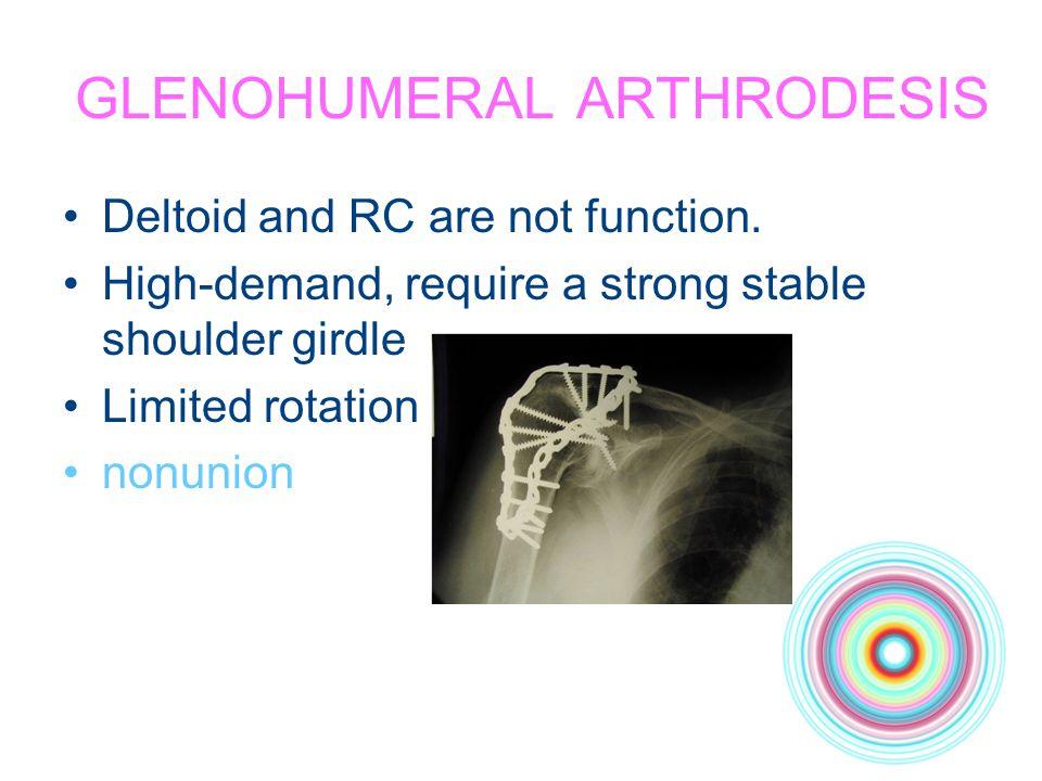 GLENOHUMERAL ARTHRODESIS