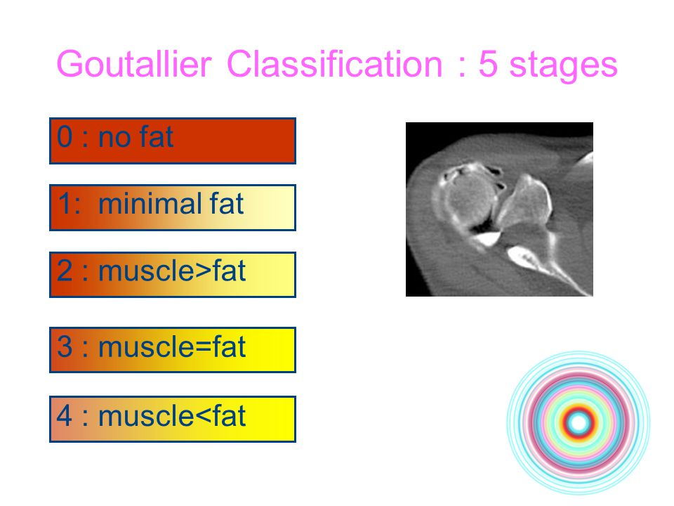 Goutallier Classification : 5 stages