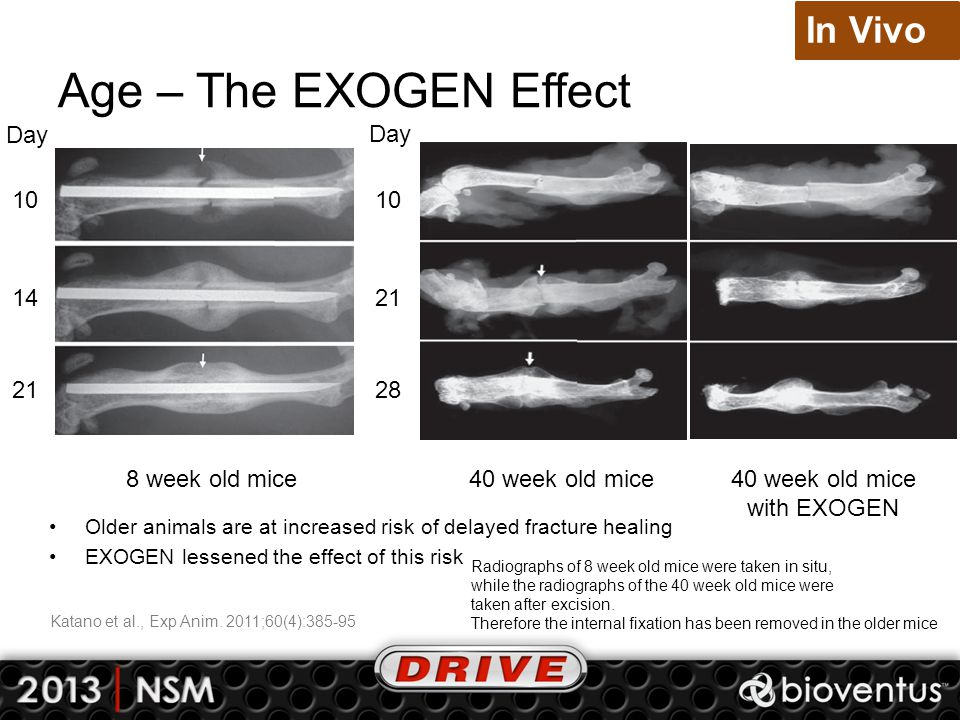 Age – The EXOGEN Effect In Vivo Day Day 10 10 14 21 21 28