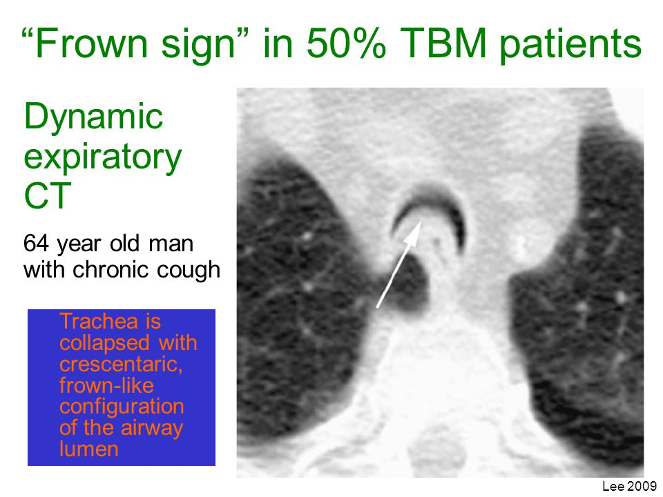 Frown sign in 50% TBM patients