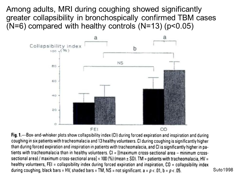 Among adults, MRI during coughing showed significantly greater collapsibility in bronchospically confirmed TBM cases (N=6) compared with healthy controls (N=13) (p<0.05)