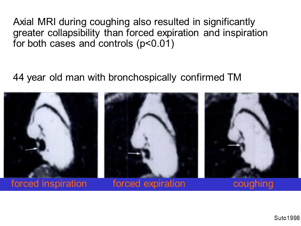 44 year old man with bronchospically confirmed TM