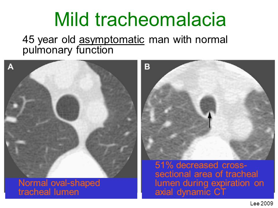 Mild tracheomalacia 45 year old asymptomatic man with normal pulmonary function.