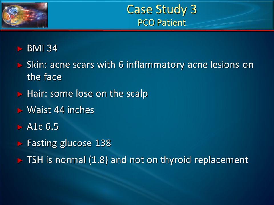 Case Study 3 PCO Patient BMI 34