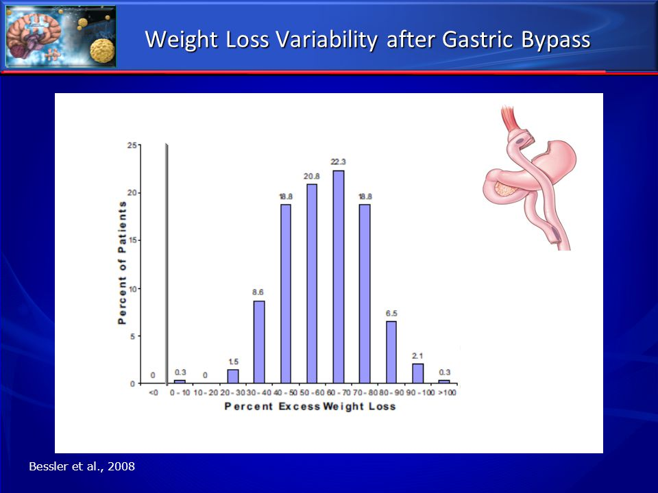 Weight Loss Variability after Gastric Bypass