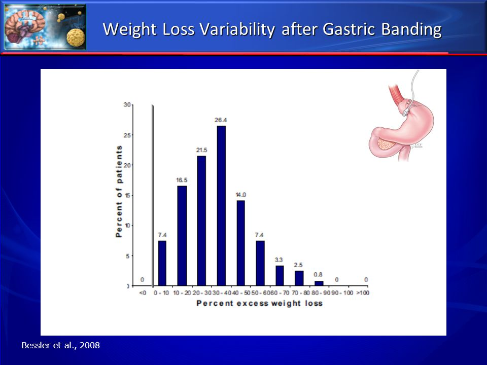 Weight Loss Variability after Gastric Banding