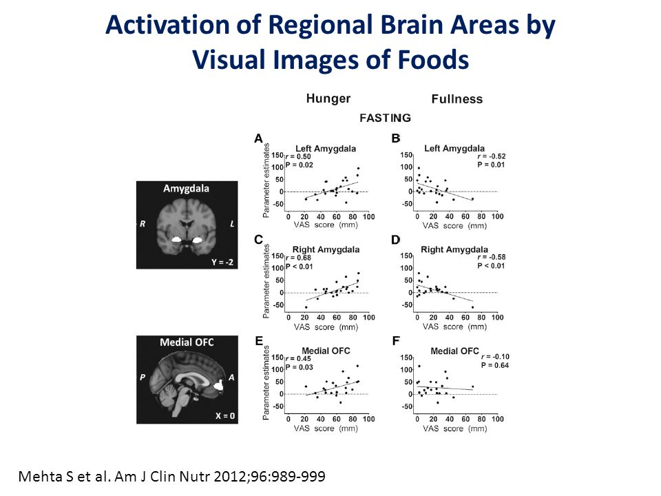 Activation of Regional Brain Areas by Visual Images of Foods