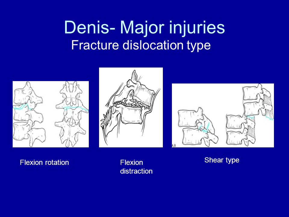 Denis- Major injuries Fracture dislocation type Shear type