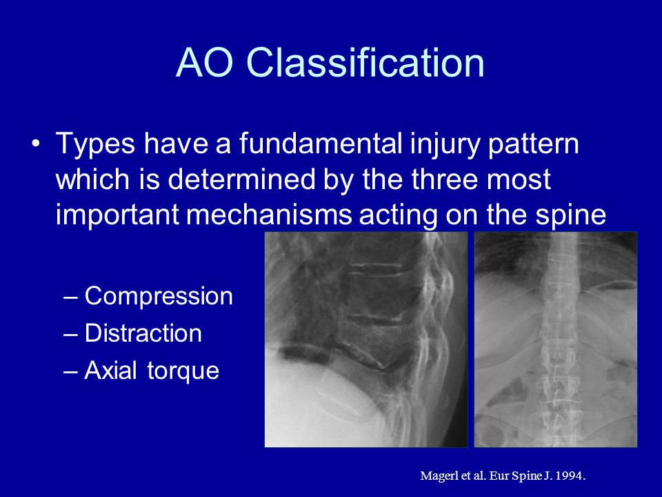 AO Classification Types have a fundamental injury pattern which is determined by the three most important mechanisms acting on the spine.