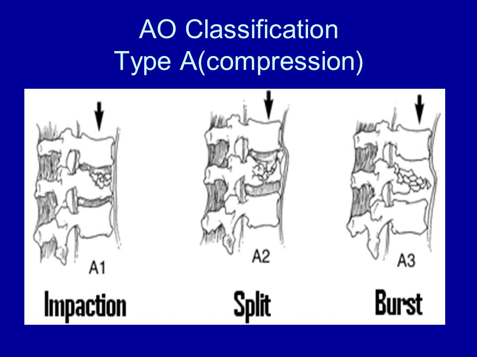 AO Classification Type A(compression)