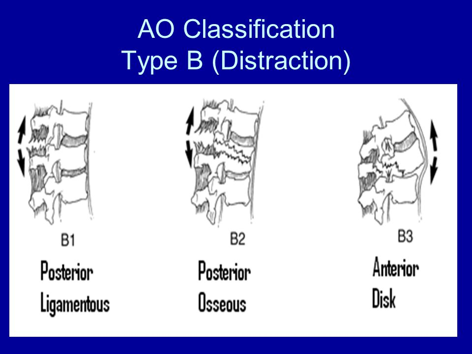AO Classification Type B (Distraction)