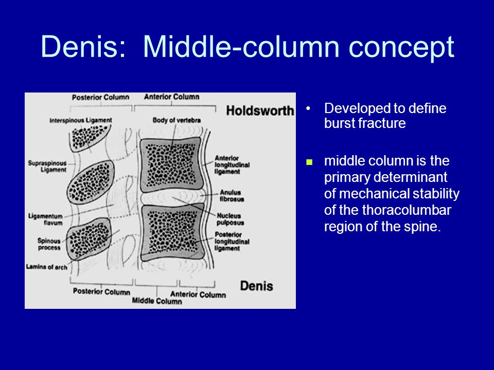 Denis: Middle-column concept