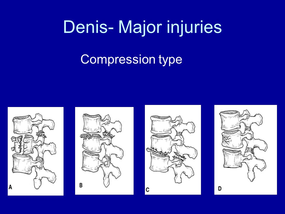 Denis- Major injuries Compression type