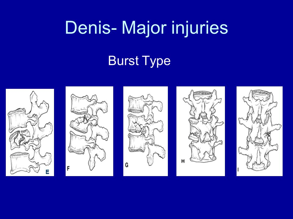 Denis- Major injuries Burst Type E