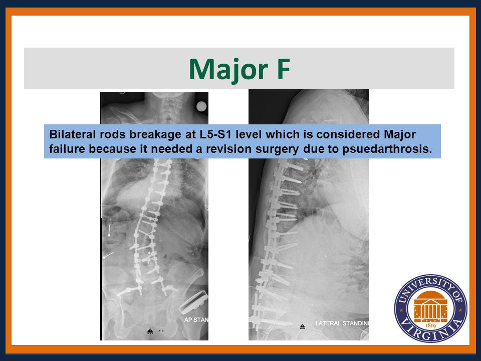 Major F Bilateral rods breakage at L5-S1 level which is considered Major failure because it needed a revision surgery due to psuedarthrosis.
