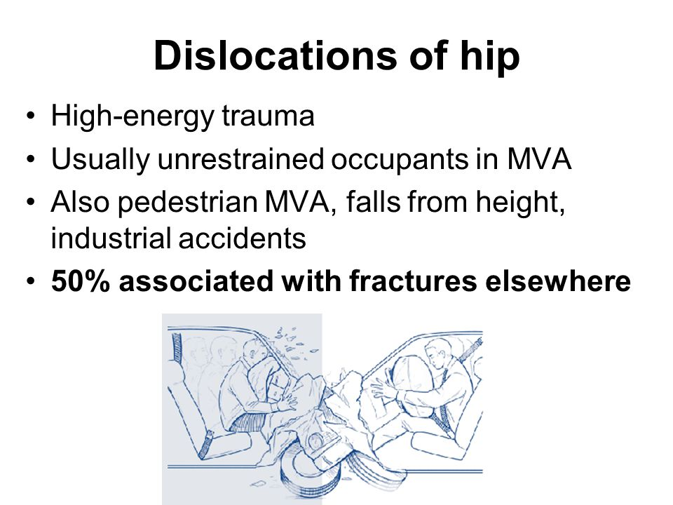 Dislocations of hip High-energy trauma