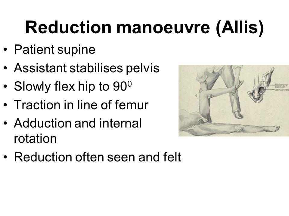 Reduction manoeuvre (Allis)