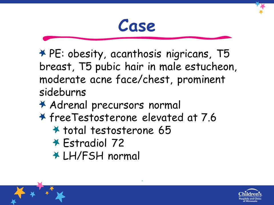 Case PE: obesity, acanthosis nigricans, T5 breast, T5 pubic hair in male estucheon, moderate acne face/chest, prominent sideburns.