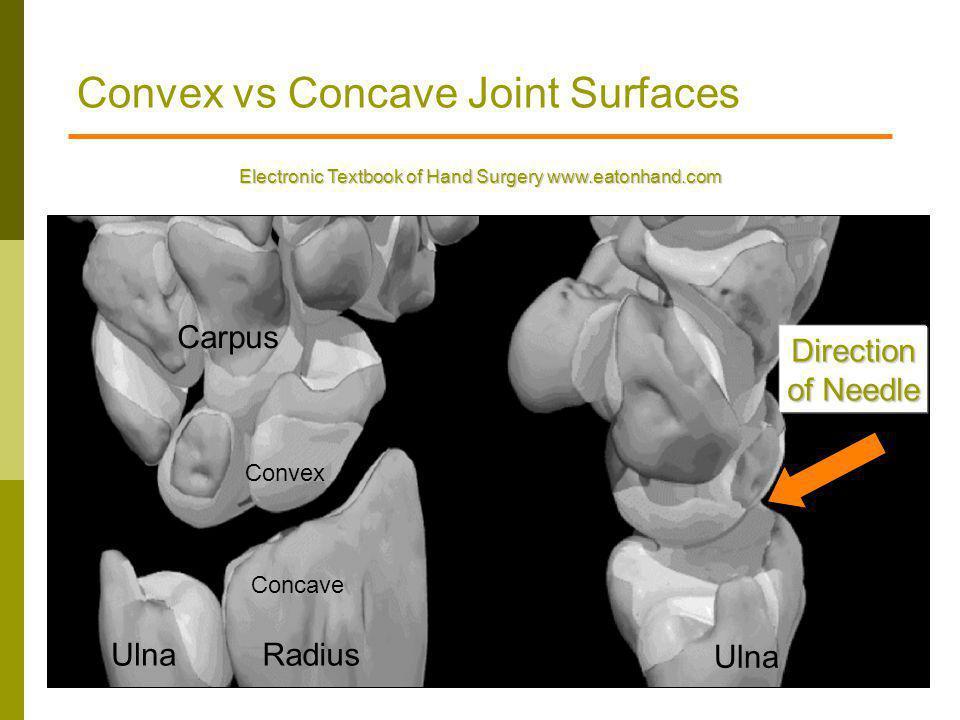 Convex vs Concave Joint Surfaces