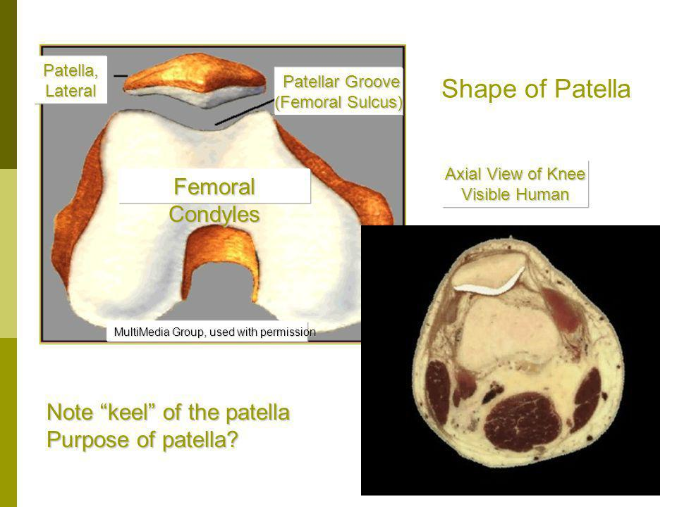 Shape of Patella Femoral Condyles Note keel of the patella
