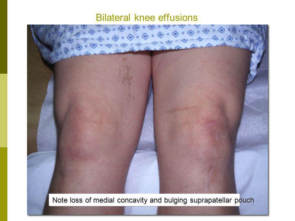 Bilateral knee effusions