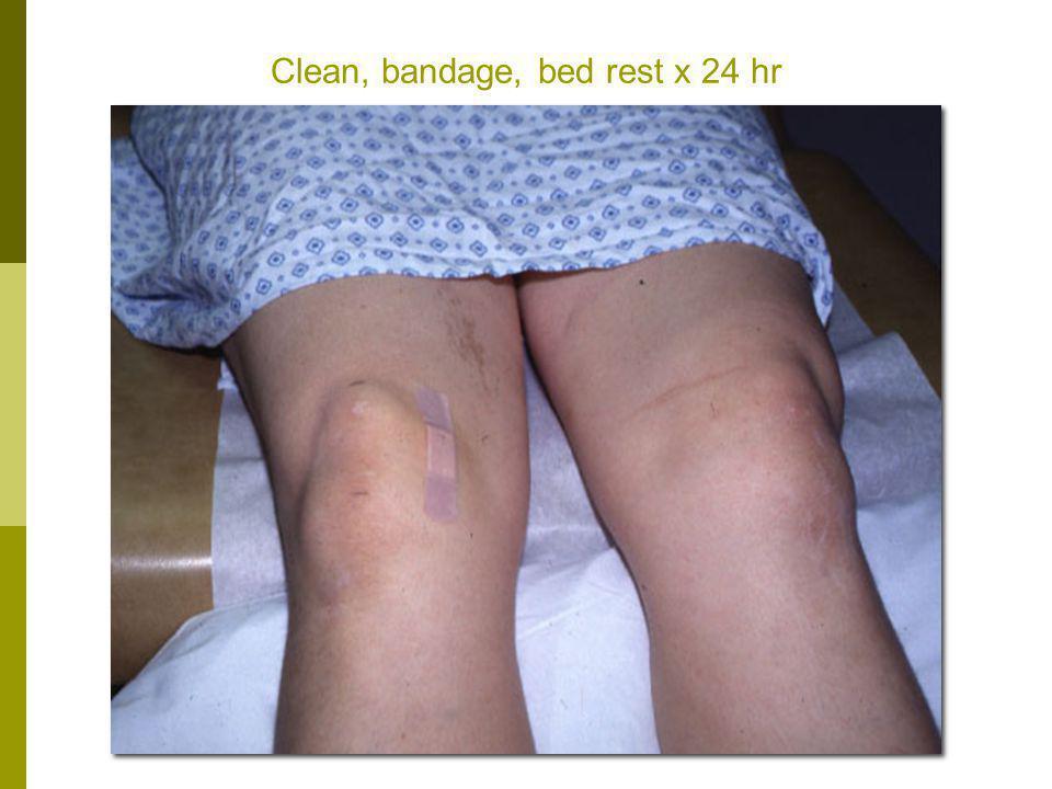 Clean, bandage, bed rest x 24 hr