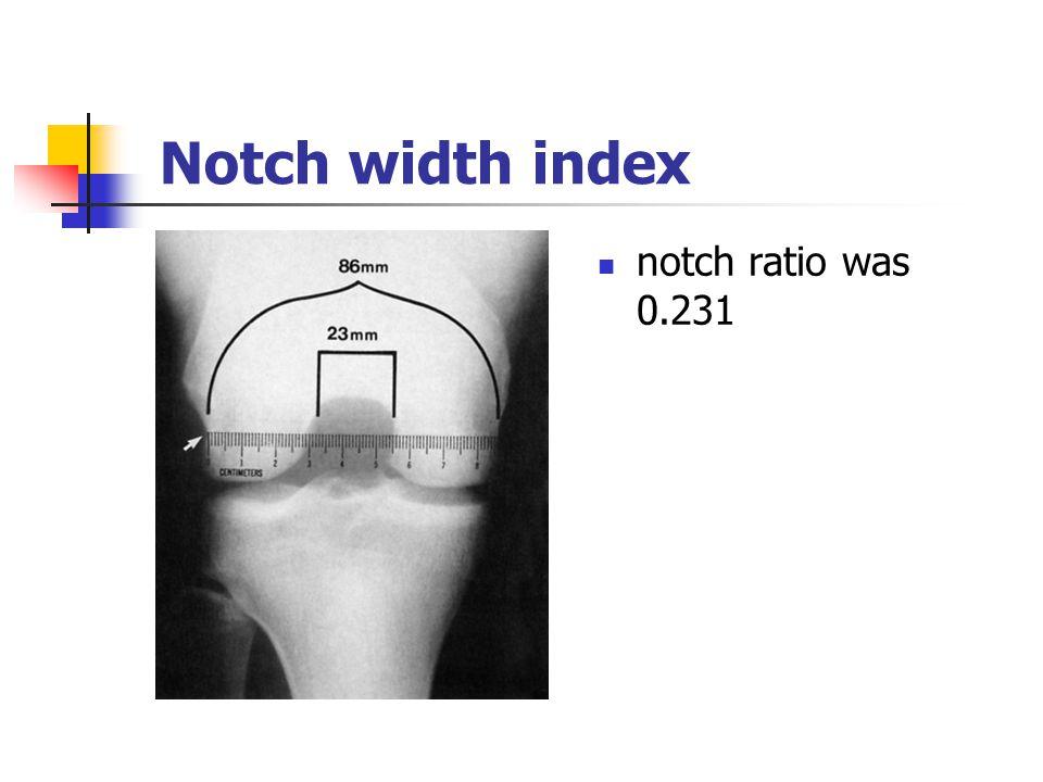 Notch width index notch ratio was 0.231