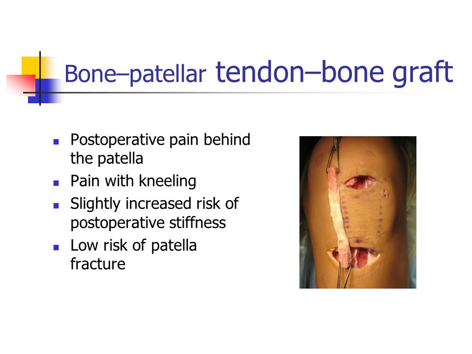 Bone–patellar tendon–bone graft