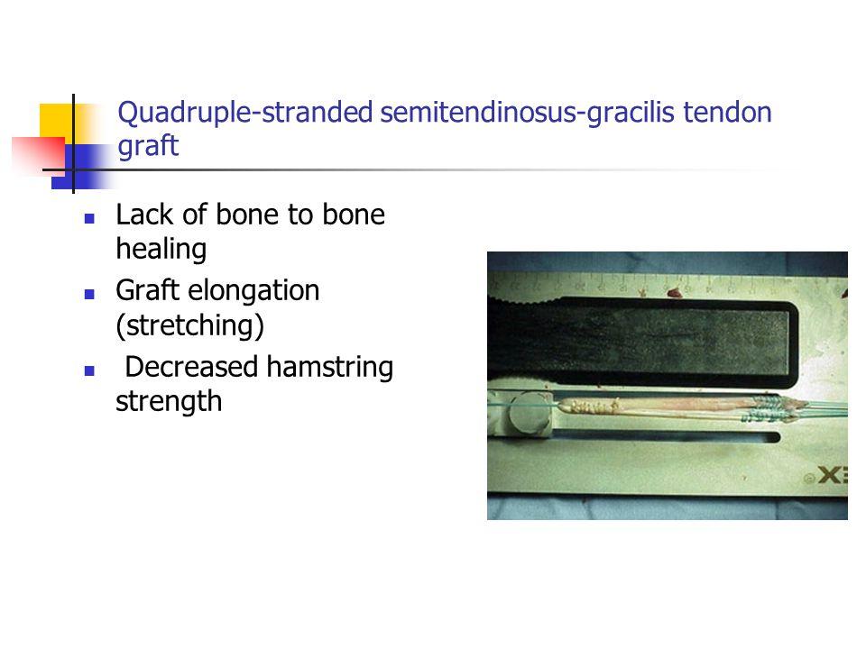 Quadruple-stranded semitendinosus-gracilis tendon graft