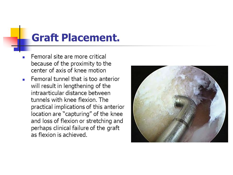 Graft Placement. Femoral site are more critical because of the proximity to the center of axis of knee motion.