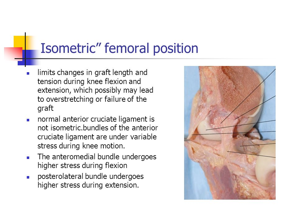 Isometric femoral position