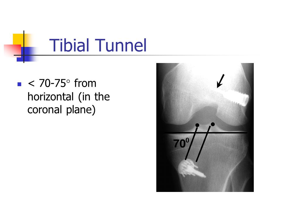 Tibial Tunnel < 70-75° from horizontal (in the coronal plane)