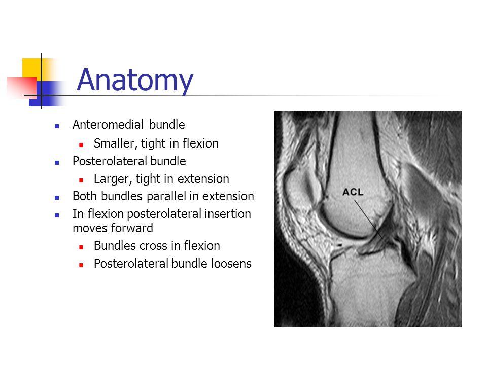 Anatomy Anteromedial bundle Smaller, tight in flexion