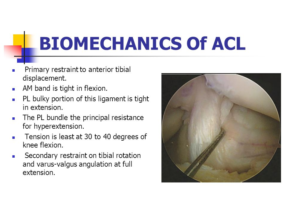 BIOMECHANICS Of ACL Primary restraint to anterior tibial displacement.