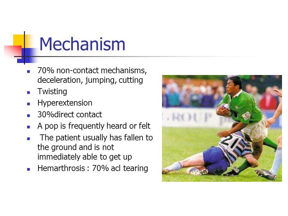 Mechanism 70% non-contact mechanisms, deceleration, jumping, cutting