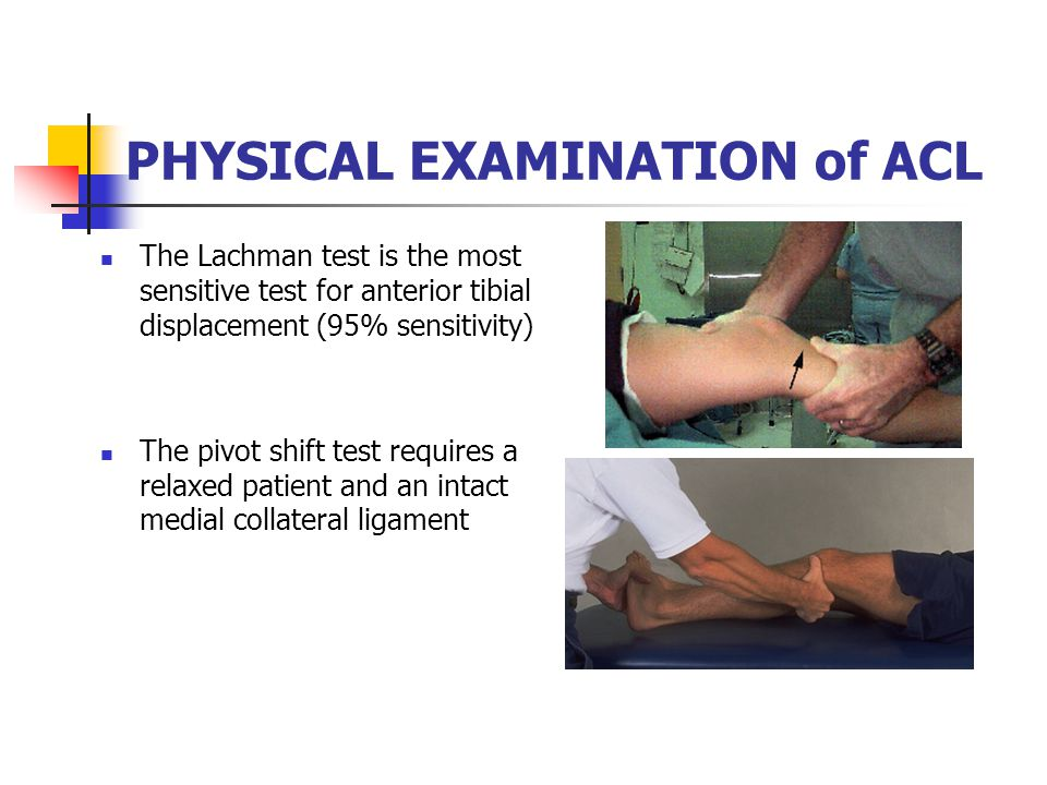 PHYSICAL EXAMINATION of ACL