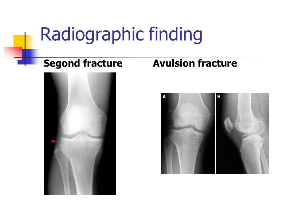 Radiographic finding Segond fracture Avulsion fracture