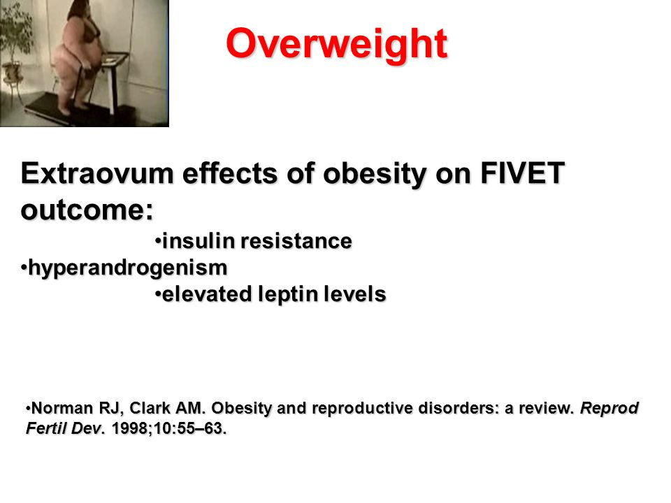 Overweight Extraovum effects of obesity on FIVET outcome: