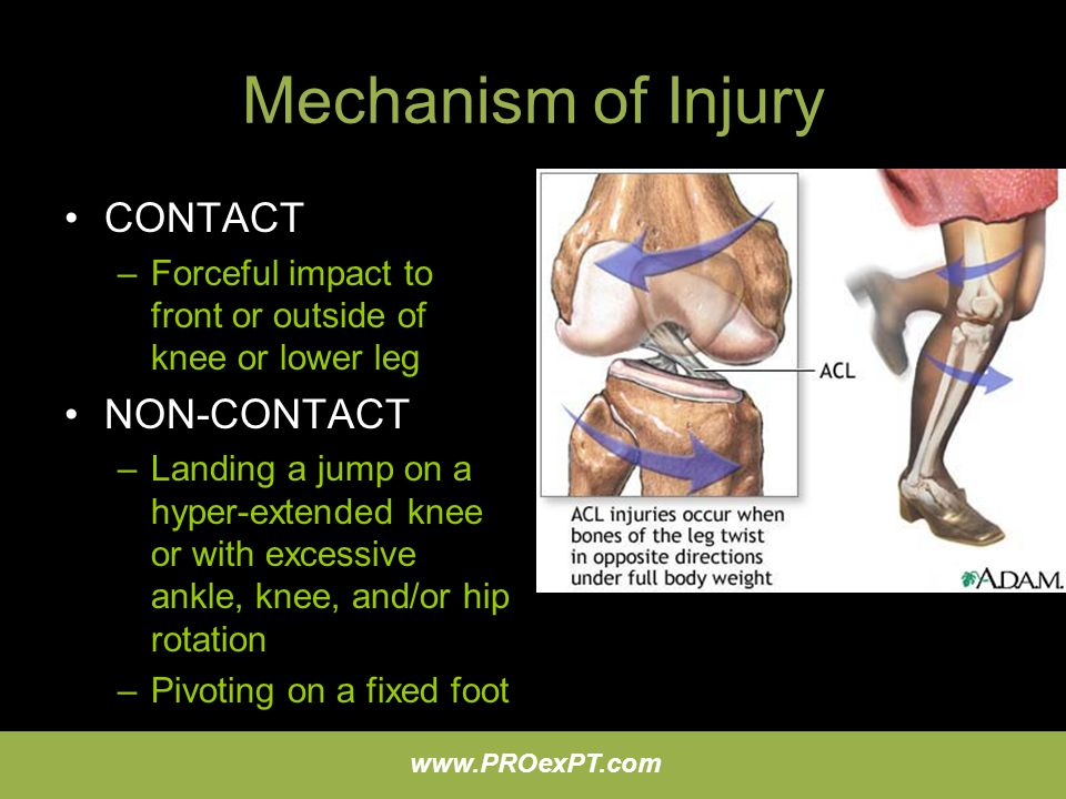 Mechanism of Injury CONTACT