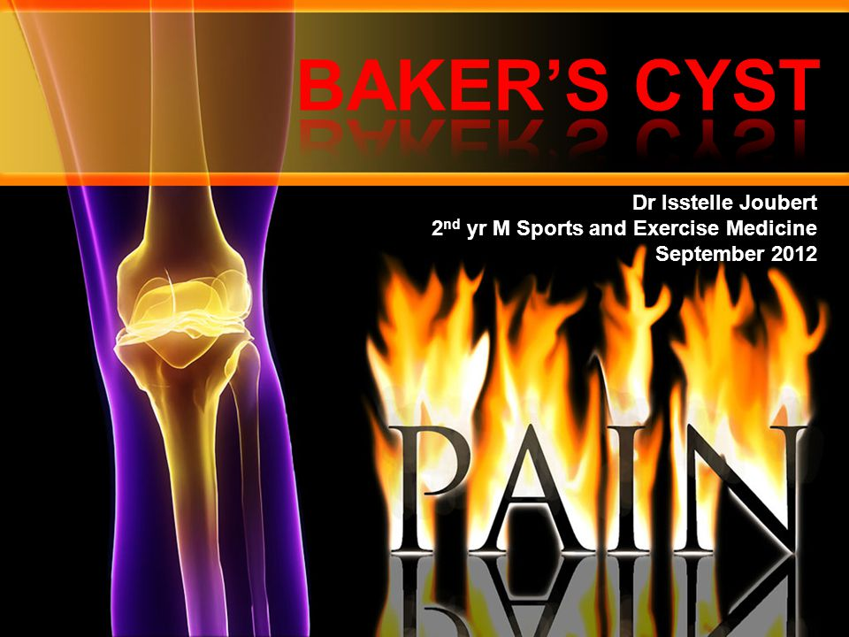 BAKER'S CYST Dr Isstelle Joubert 2nd yr M Sports and Exercise Medicine