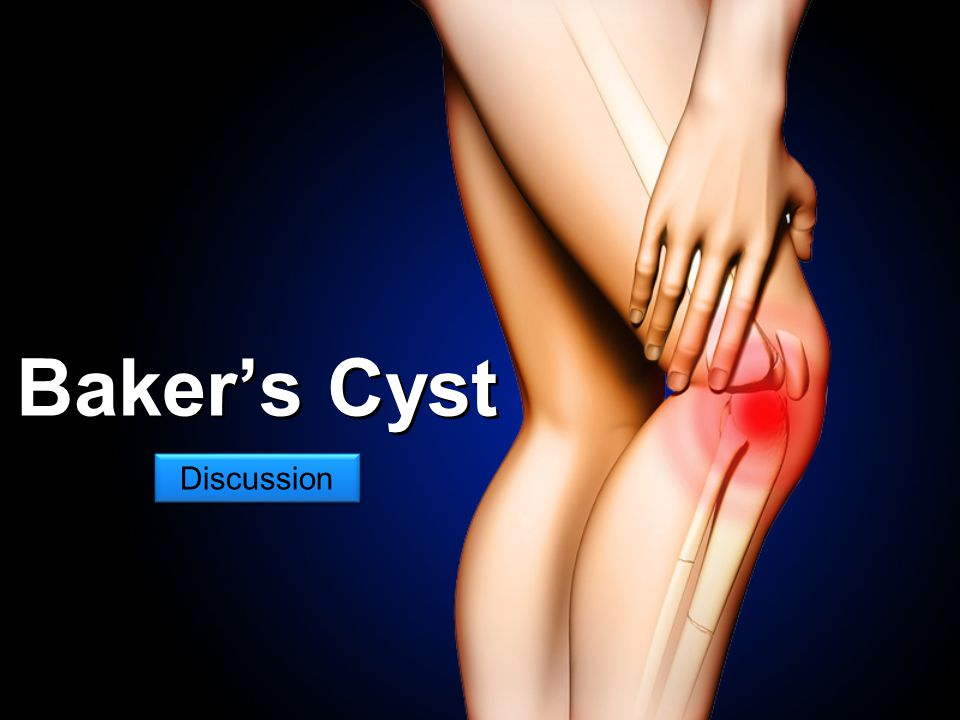 Baker's Cyst Discussion